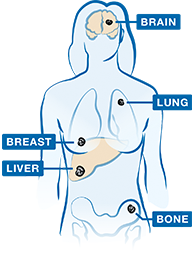 Most common places where Advanced Breast Cancer may Spread